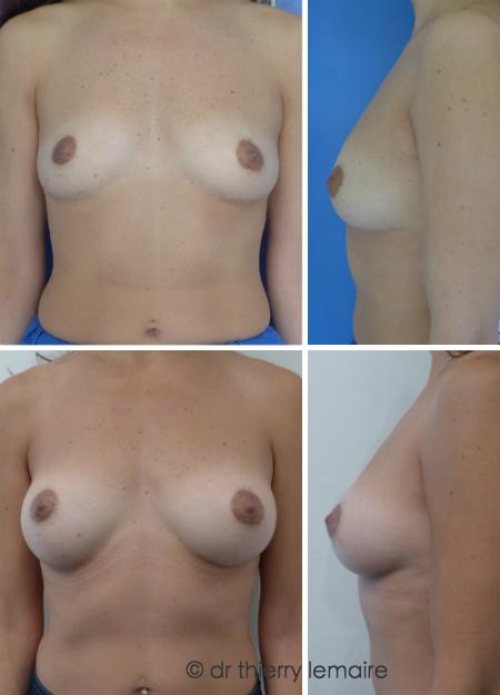 Augmentation mammaire « à minima » avec des prothèses rondes de 170 ml profil Haut placées sous le muscle et sous la glande (Dual Plane)