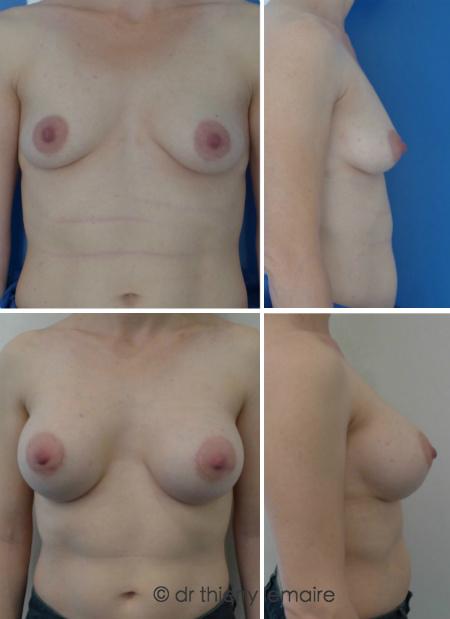 Augmentation mammaire naturelle avec des prothèses mammaires rondes par Docteur Lemaire de Paris.