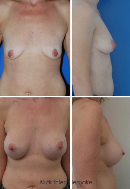 Augmentation mammaire naturelle avec des prothèses mammaires rondes faites par Docteur Lemaire.