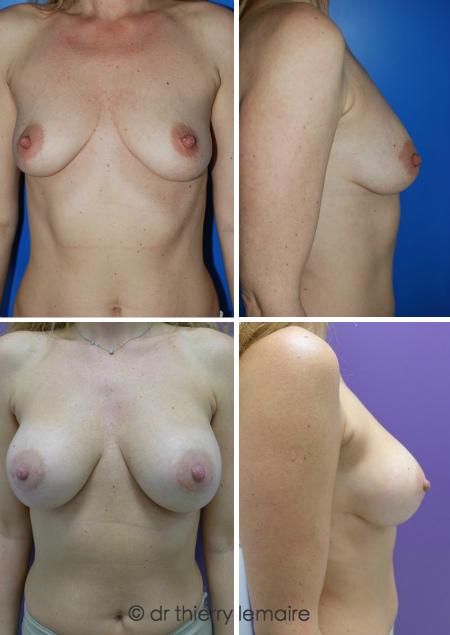 Augmentation mammaire naturelle avec des prothèses mammaires rondes de 300ml Profil Haut placées en arrière du muscle et de la glande (Dual Plane).