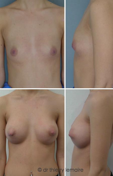 Augmentation mammaire naturelle chez une jeune femme présentant des seins tubéreux, principalement à gauche.