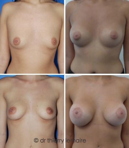 Augmentation mammaire chez Docteur Thierry Lemaire - des prothèses rondes de 300 ml