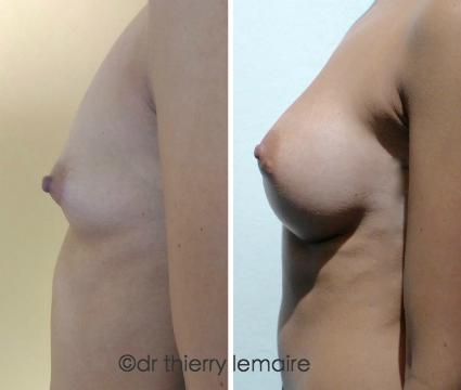 Photos Avant/Après d'une augmentation mammaire naturelle obtenue avec des prothèses mammaires rondes de 265 ml profil haut.