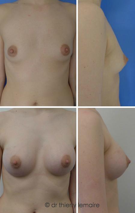 Resultat obtenu avec des protheses mammaires rondes Profil Haut de 265 ml. Avant apres.