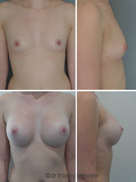 Docteur Lemaire - augmentation mammaires par implants mammaires rondes.