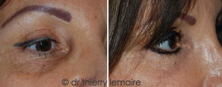 Photo avant/après d'un lipofilling de cernes dus à un « creux sous les yeux » et une hyperpigmentation.