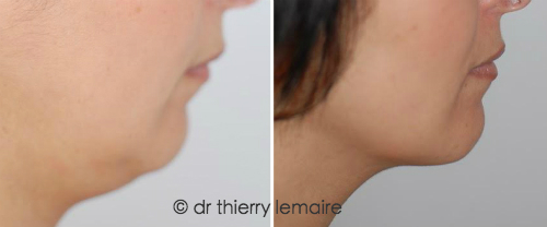 La liposuccion du double menton et du cou sous anesthésie locale.