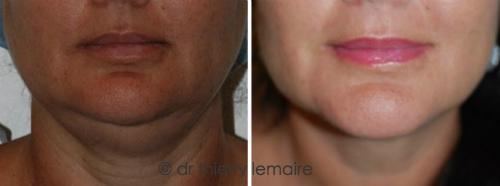 Photo Avant/Après une lipoaspiration du double menton qui a permis de rajeunir le cou en supprimant l'aspect « empaté ».