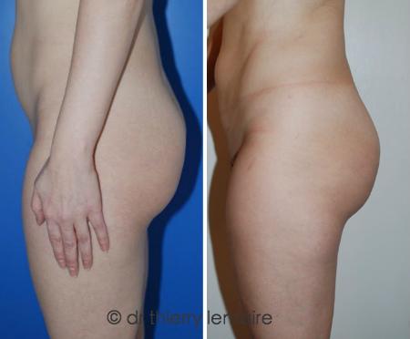 Photos avant après (5 mois ) un lipofilling des fesses fait par Docteur Lemaire.