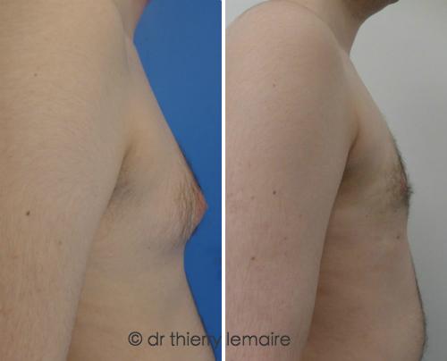 Photos avant-après traitement d'une gynécomastie d'origine graisseuse faite par Dr. Thierry Lemaire.
