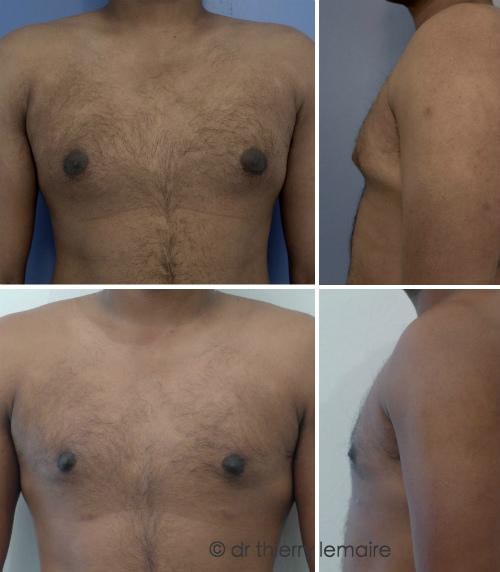 Docteur Thierry Lemaire et sa gynécomastie faite à Paris - les aréoles de ce patient étaient larges.