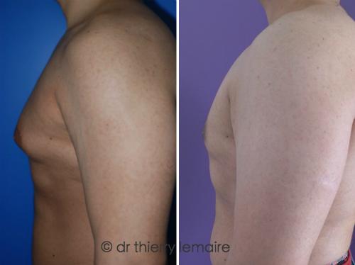 Avant apres. Traitement d'une gynecomastie d'origine graisseuse, patient a des muscles pectoraux tres developpes.