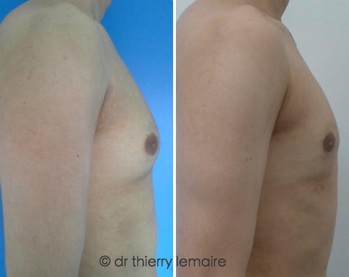 Photos avant-après traitement d'une adipomastie, Docteur Lemaire, Paris.