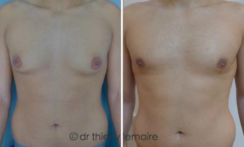 Adipomastie - gynecomastie par lipoaspiration - Dr Thierry Lemaire