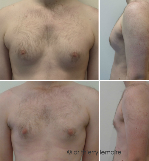 Photos avant-après traitement d'une adipomastie importante par lipoaspiration - gynécomatie, Dr Lemaire.