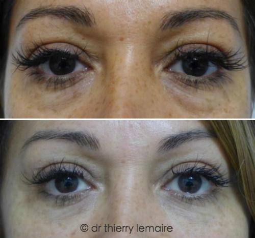Blepharoplastie, Lipofilling chez une patiente chez une patiente présentant des cernes dus à des poches sous les yeux peu importantes. Avant apres.