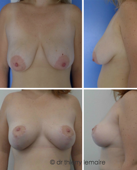 Photos avant apres un lifting des seins selon la technique de la mammoplastie verticale, mastopexie.