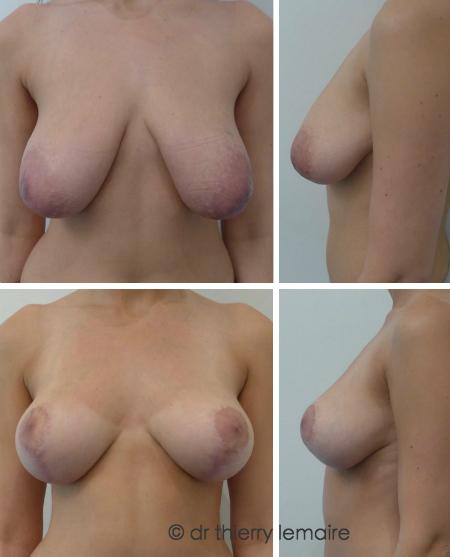 Docteur Thierry Lemaire - 9 mois après le traitement d'une ptôse mammaire