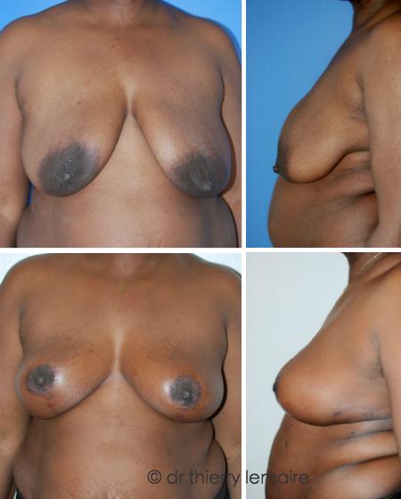 15 mois après un lifting des seins selon la technique de la mammoplastie verticale - par Dr. Thierry Lemaire.