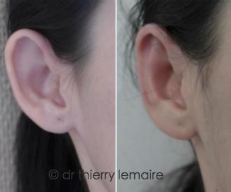 Otoplastie par plicature du cartilage - oreilles décollées corrigées par Docteur Lemaire.