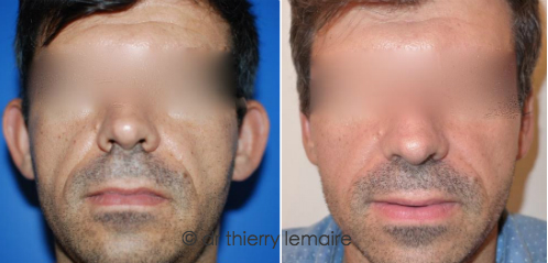 La correction des oreilles décollées chez un homme faite par Docteur Lemaire