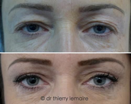 Photos avant-après blépharoplastie supérieure chez une femme de 39 ans.