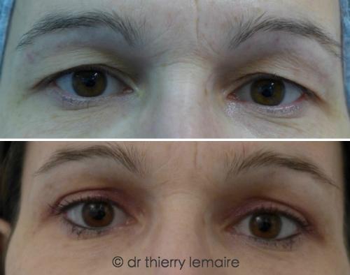 Photos avant-après blépharoplastie supérieure chez une femme de 40 ans.