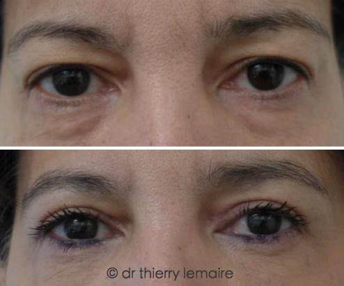 Photos avant/après - blépharoplasties supérieure et inférieure.