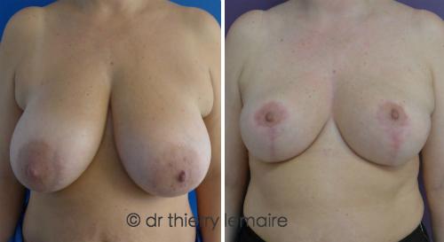 Photos avant et 6 mois après une réduction mammaire faite par Docteur Thierry Lemaire.