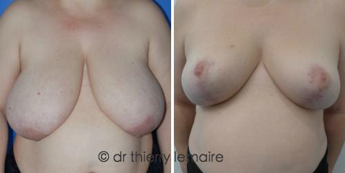 Docteur Lemaire - Photos avant et un an après une réduction mammaire importante (650 g de chaque côté).