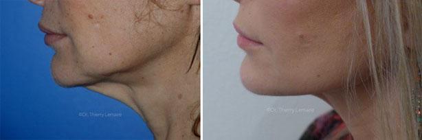 lifting du visage d'une patiente du docteur lemaire