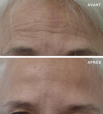 images avant après traitement contre les rides