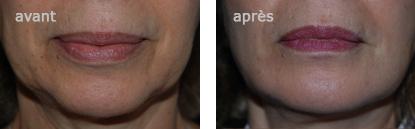 restauration des volumes du visage par le docteur lemaire