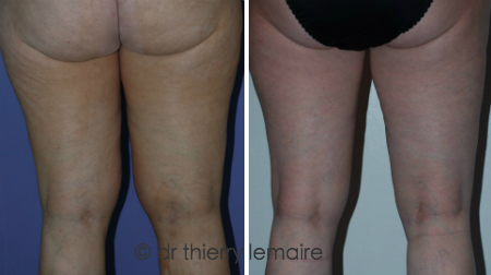 Photos avant après une liposuccion de la face interne des cuisses et des genoux