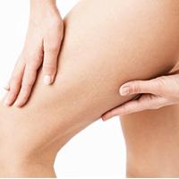 Photo cuisses et jambes chirurgie plastique