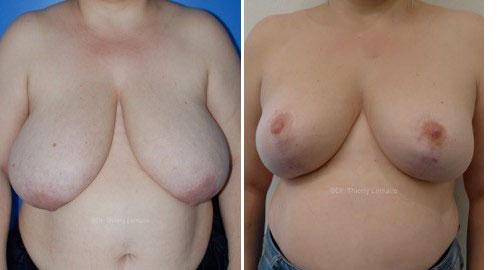 résultat mammoplastie par le docteur lemaire