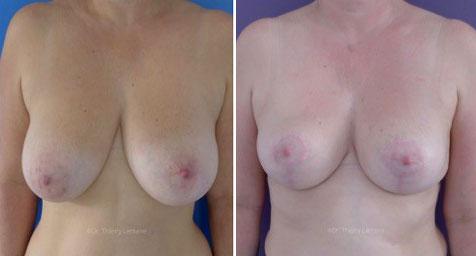 image avant après mammoplastie par docteur lemaire