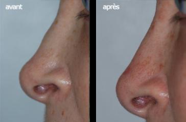 Photo d'une correction d'un déformation nasale, rhinoplastie médicale