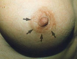 Photo cicatrice aréolaire prothèse mammaire
