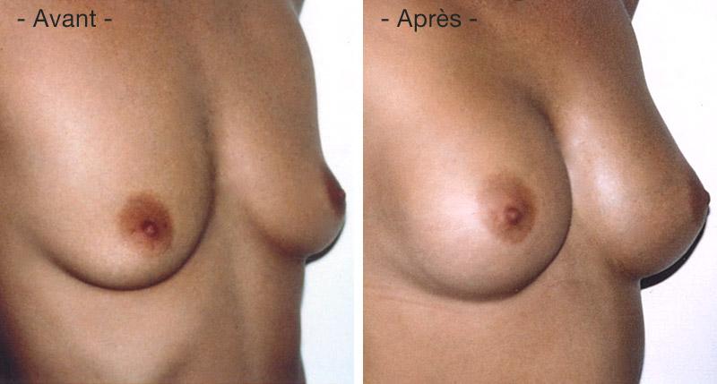opération lipofilling des seins du docteur lemaire