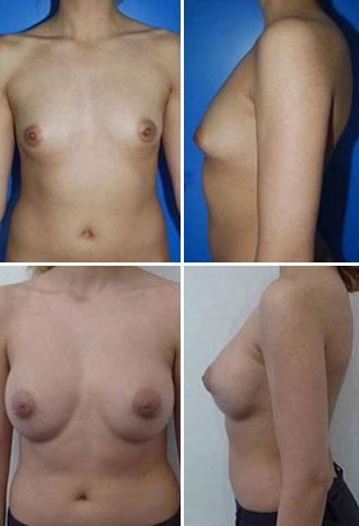 image avant après femme avec chirurgie augmentation mammaire
