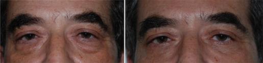 Photos traitement des poches sous les yeux, blépharoplastie inférieure